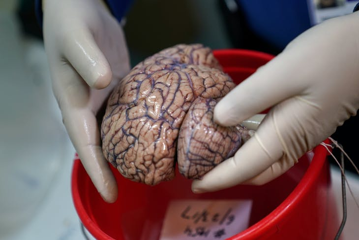 Dr. Vahram Haroutunian holds a human brain in a brain bank in the Bronx borough of New York City, New York, U.S. June 28, 2017.  Picture taken June 28, 2017.  REUTERS/Carlo Allegri - RC1768FE4310